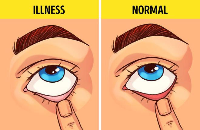 Thực hiện 5 bài kiểm tra cơ bản sau giúp bạn phát hiện sớm bệnh lý cơ thể đang mắc phải - Ảnh 1