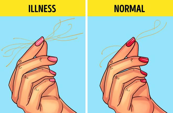 Thực hiện 5 bài kiểm tra cơ bản sau giúp bạn phát hiện sớm bệnh lý cơ thể đang mắc phải - Ảnh 2