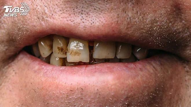 Thanh niên bị ung thư giai đoạn cuối vì ăn trầu và hút thuốc - Ảnh 1