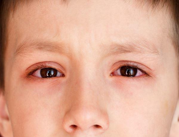 Đau mắt đỏ ở trẻ được chẩn đoán qua những dấu hiệu triệu chứng nào? - Ảnh 1