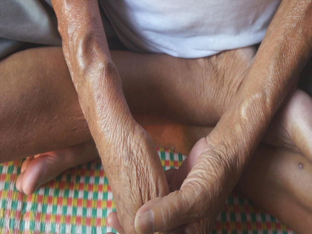 Cảm thương cụ bà 67 tuổi cần mẫn nhặt ve chai nuôi chồng chạy thận - Ảnh 7