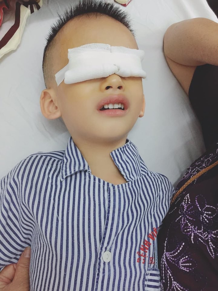 Đưa con đi khám mắt, mẹ bị bác sĩ mắng té tát vì cho con xem điện thoại khiến 1 mắt lác, 1 mắt loạn - Ảnh 1