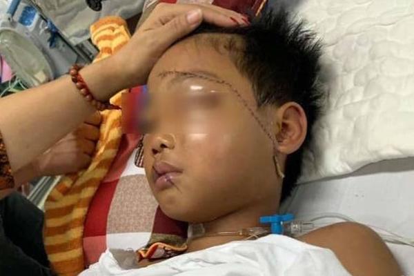 Vụ cháu bé bị bác họ chém đứt lìa tay ở Bắc Giang: Nạn nhân vô cùng sợ hãi, hoảng loạn khi tỉnh lại - Ảnh 1
