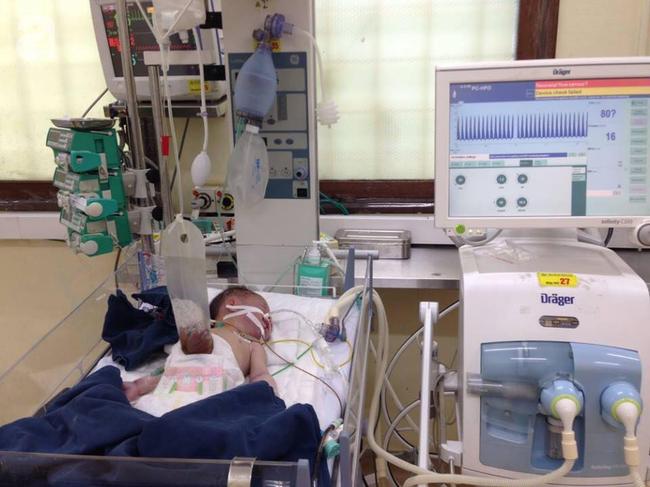 Chồng 'chết lặng' sau khi tự đỡ đẻ cho vợ thấy con gái mới sinh bị lòi nội tạng ra ngoài - Ảnh 2