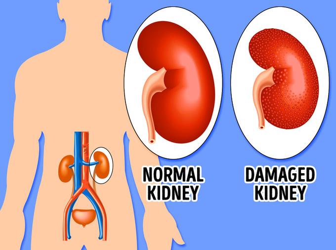 8 tác dụng phụ nguy hiểm khi dùng thuốc giảm cân - Ảnh 2