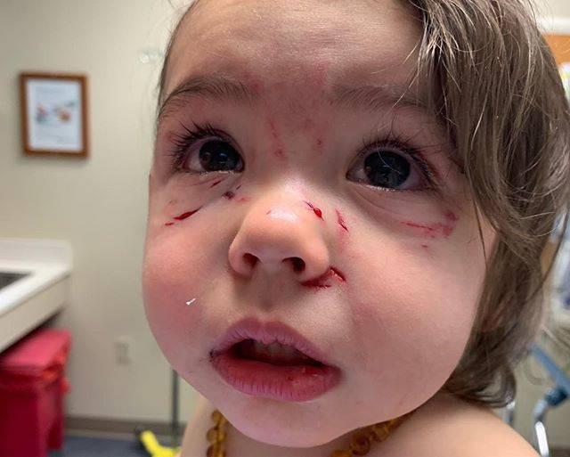 Bé gái bị chó cắn và cào liên tiếp vào mặt chỉ trong vài giây mẹ không để mắt tới con - Ảnh 1