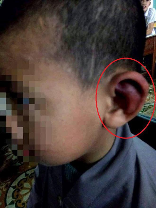 Thông tin bất ngờ vụ việc bé trai bị sư thầy đánh tím bầm cơ thể - Ảnh 3