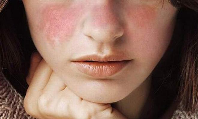 4 dấu hiệu báo động làn da đang ngày càng tồi tệ do gặp căng thẳng thường xuyên - Ảnh 4