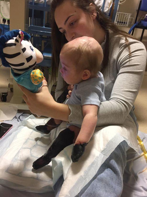 Bé trai 11 tháng rụng hết tay, chân sau 2 ngày viêm họng - Ảnh 1