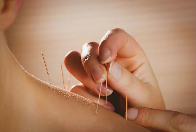 5 liệu pháp chống lại 'cơn bốc hỏa' của phụ nữ thời mãn kinh - Ảnh 2