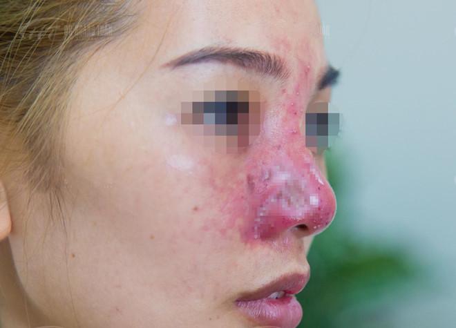 Cô gái suýt mất mũi vì tiêm filler giá rẻ ở spa - Ảnh 1