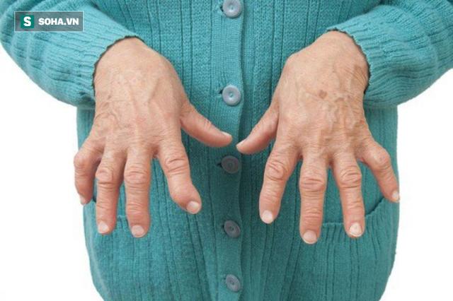 Viêm khớp dạng thấp rất khó chữa: 9 liệu pháp tự nhiên hiệu quả nhất bạn nên tham khảo - Ảnh 1