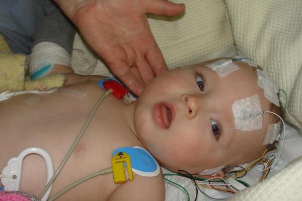 Cảnh báo trẻ sơ sinh xuất huyết não do thiếu vitamin K - Ảnh 1