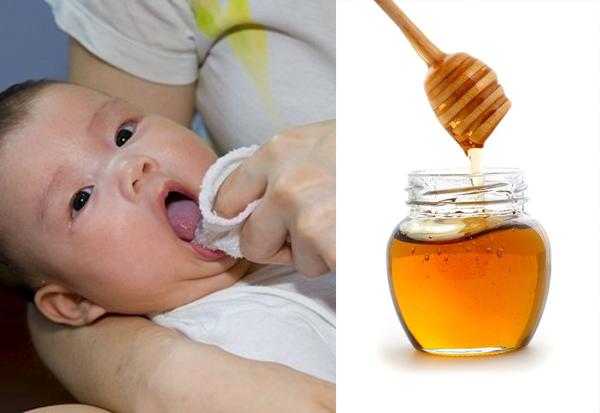 Cách rơ lưỡi bằng mật ong đảm bảo an toàn cho trẻ trên 1 tuổi - Ảnh 1