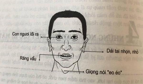 Nhân tướng học: Những đặc điểm xấu trên gương mặt đàn ông có tính trăng hoa, nhiều chuyện - Ảnh 2