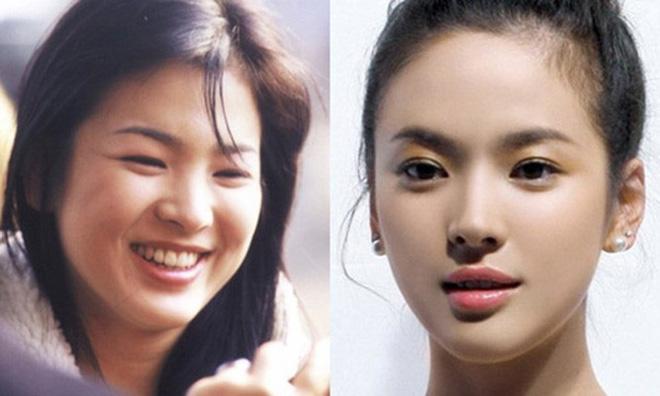 Uống 3 lít nước chanh mỗi ngày: Đây chính là cách giảm cân đặc biệt của Song Hye Kyo - Ảnh 2