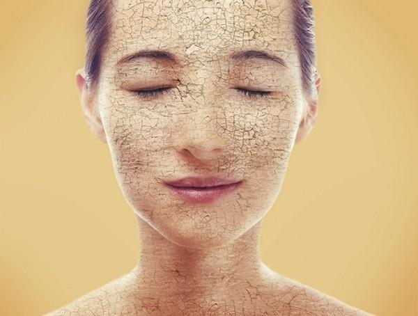 Tất tần tật cách giải quyết các vấn đề về da mà bạn thường gặp phải vào mùa nắng gắt - Ảnh 1