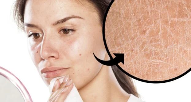6 tác hại khi dùng khăn ướt tẩy trang với da mặt - Ảnh 1