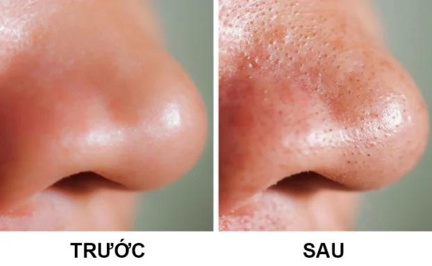 6 tác hại khi dùng khăn ướt tẩy trang với da mặt - Ảnh 2