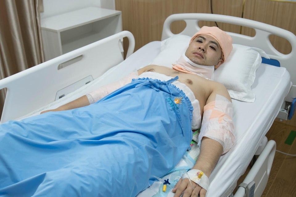 Sau khi bị chê mập ú, lộ ảnh Akira Phan băng bó từ đầu đến chân, nghi phẫu thuật thẩm mỹ - Ảnh 1