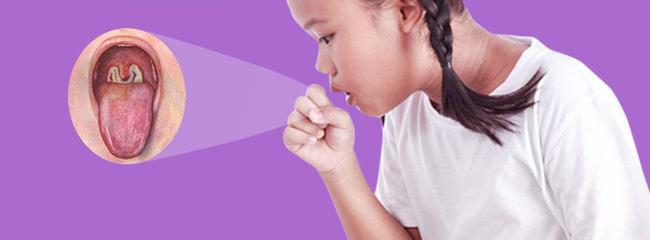 2 bé ở Đắk Nông mắc bệnh bạch hầu: Những điều cần biết về bệnh nhiễm trùng dễ dàng qua đường hô hấp này để phòng bệnh tốt nhất - Ảnh 1