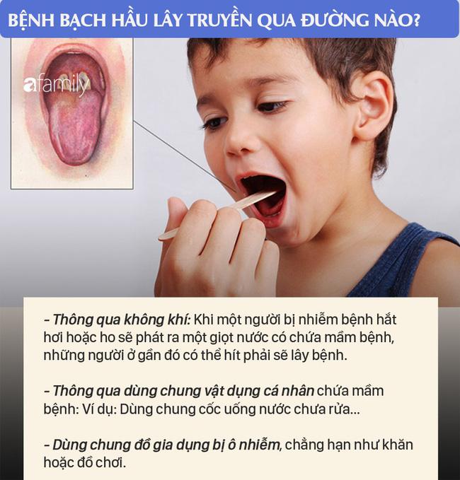 2 bé ở Đắk Nông mắc bệnh bạch hầu: Những điều cần biết về bệnh nhiễm trùng dễ dàng qua đường hô hấp này để phòng bệnh tốt nhất - Ảnh 4