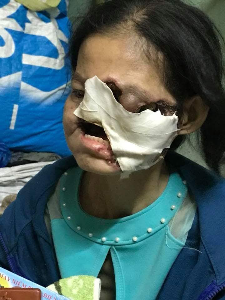 Xót xa tâm nguyện của người phụ nữ bị hủy hoại cả khuôn mặt: 'Xin cho tôi được sống với con thêm một thời gian nữa' - Ảnh 1