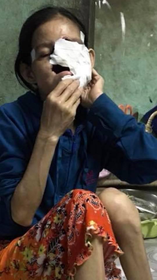 Xót xa tâm nguyện của người phụ nữ bị hủy hoại cả khuôn mặt: 'Xin cho tôi được sống với con thêm một thời gian nữa' - Ảnh 2