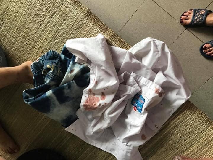 Xôn xao thông tin bé trai tiểu học bị phụ huynh cùng lớp 'bắt cóc' ra ngoài, đánh chảy máu miệng vì trót giật mũ của bạn - Ảnh 2