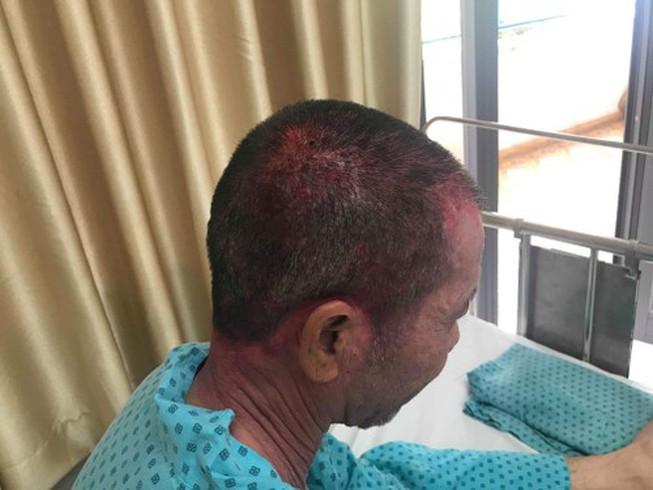 Người đàn ông nhập viện cấp cứu vì dùng thuốc nhuộm tóc - Ảnh 1