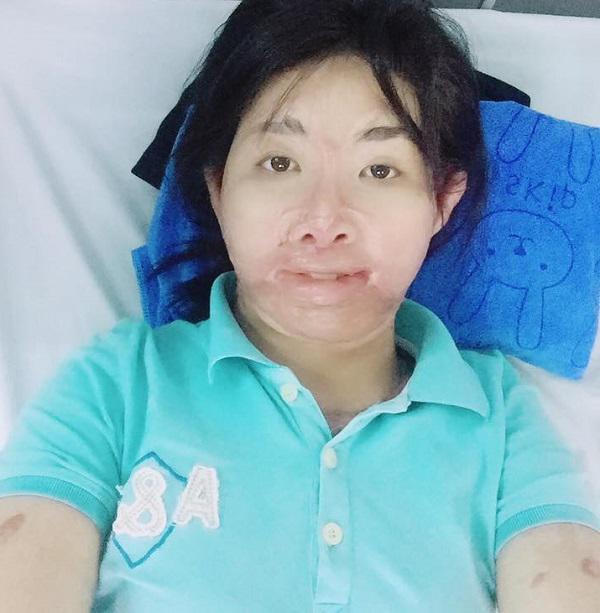 Sau 2 năm bị chồng tẩm xăng thiêu sống, mẹ trẻ Yên Bái đếm ngược từng ngày để được gặp con - Ảnh 3
