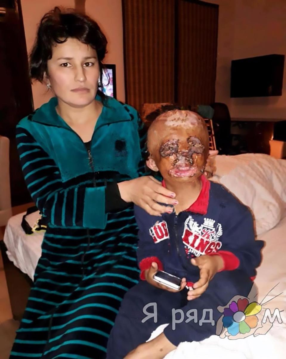Nhói lòng bức thư xin ông già Noel một khuôn mặt mới vì bị bỏng của cậu bé 5 tuổi: 'Con hay bị đau lắm nhưng không khóc đâu' - Ảnh 3
