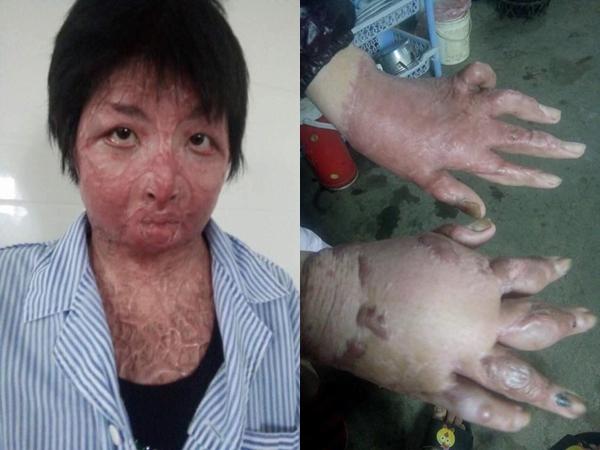Sau 2 năm bị chồng tẩm xăng thiêu sống, mẹ trẻ Yên Bái đếm ngược từng ngày để được gặp con - Ảnh 2