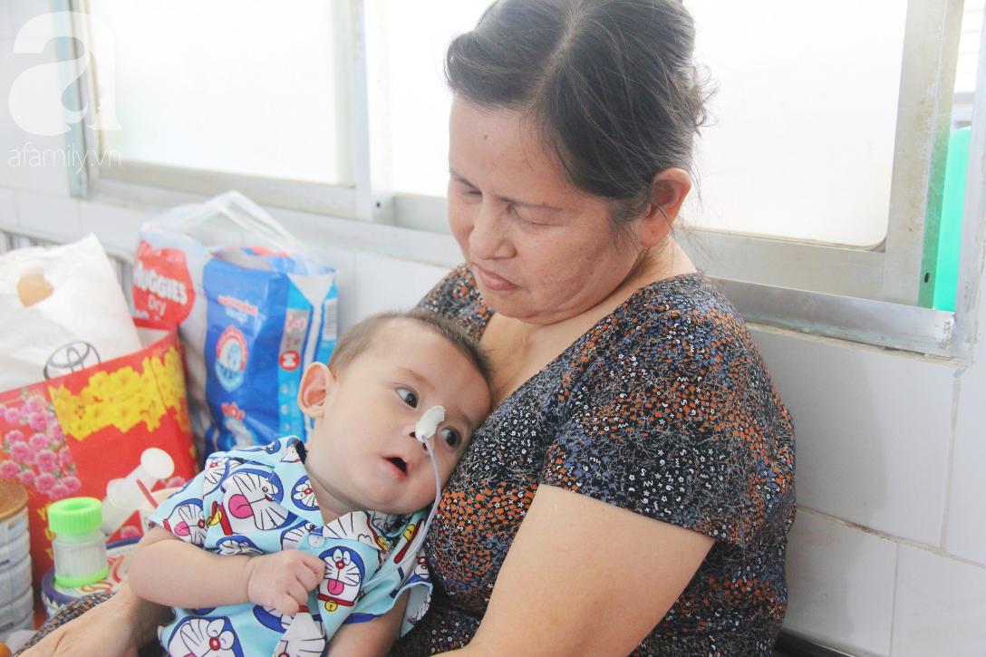 Ánh mắt cầu cứu của bé trai 7 tháng tuổi bị mẹ bỏ rơi trước cổng chùa vì mắc bệnh bại não - Ảnh 1
