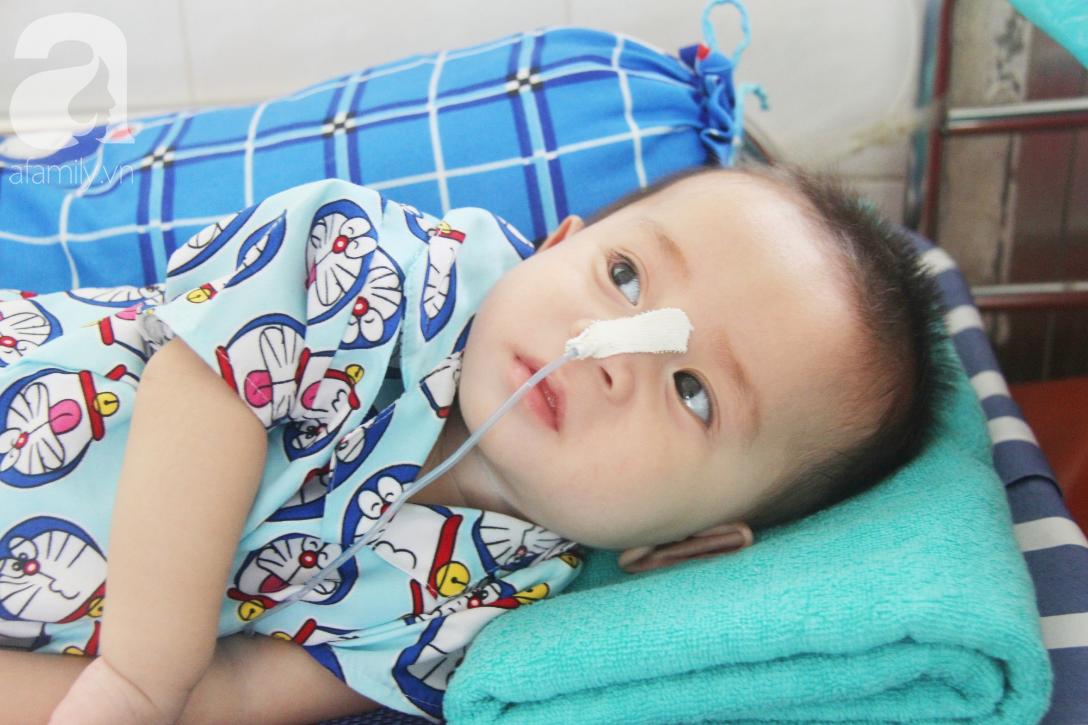Ánh mắt cầu cứu của bé trai 7 tháng tuổi bị mẹ bỏ rơi trước cổng chùa vì mắc bệnh bại não - Ảnh 2