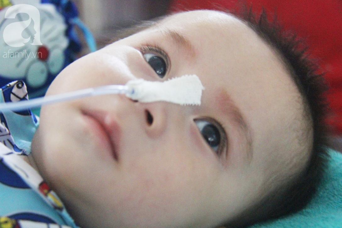 Ánh mắt cầu cứu của bé trai 7 tháng tuổi bị mẹ bỏ rơi trước cổng chùa vì mắc bệnh bại não - Ảnh 3