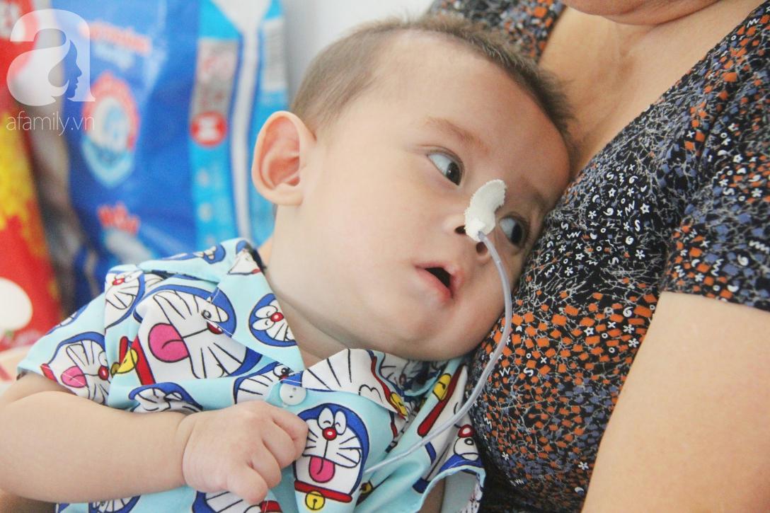 Ánh mắt cầu cứu của bé trai 7 tháng tuổi bị mẹ bỏ rơi trước cổng chùa vì mắc bệnh bại não - Ảnh 5