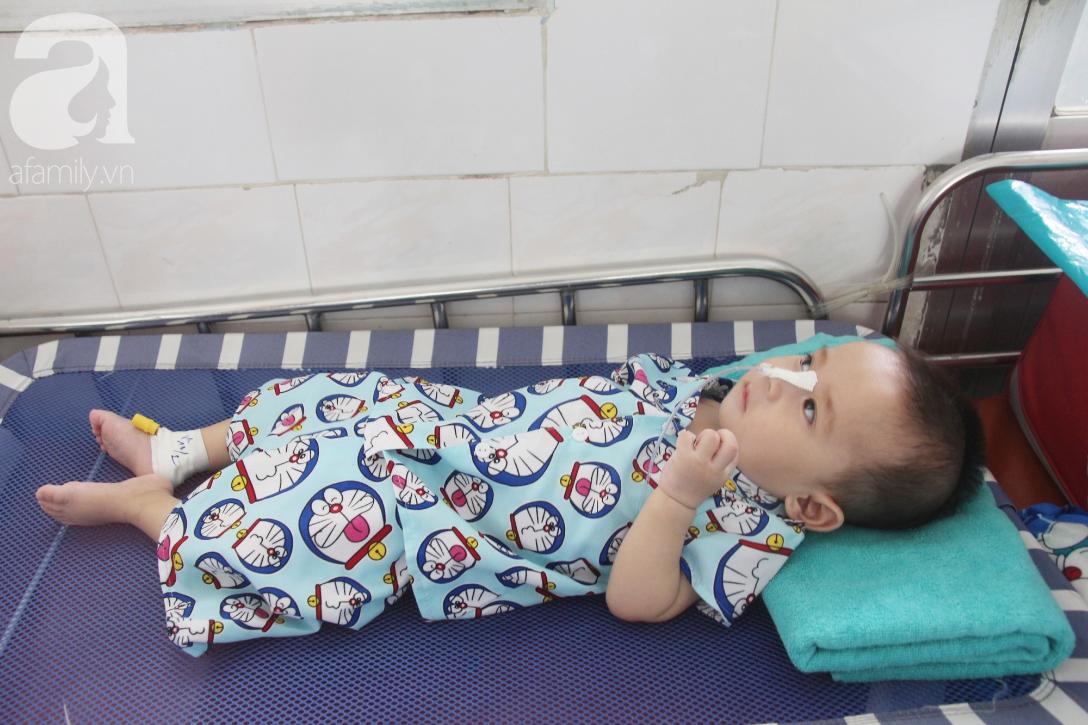 Ánh mắt cầu cứu của bé trai 7 tháng tuổi bị mẹ bỏ rơi trước cổng chùa vì mắc bệnh bại não - Ảnh 6