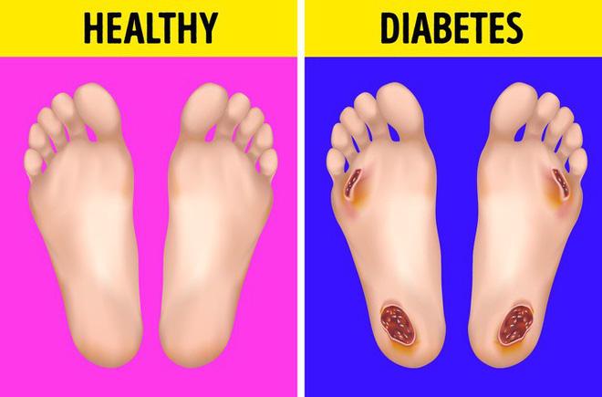 Cẩn thận với những biểu hiện khác thường ở bàn chân đang ngầm cảnh báo sớm bệnh tiểu đường - Ảnh 2