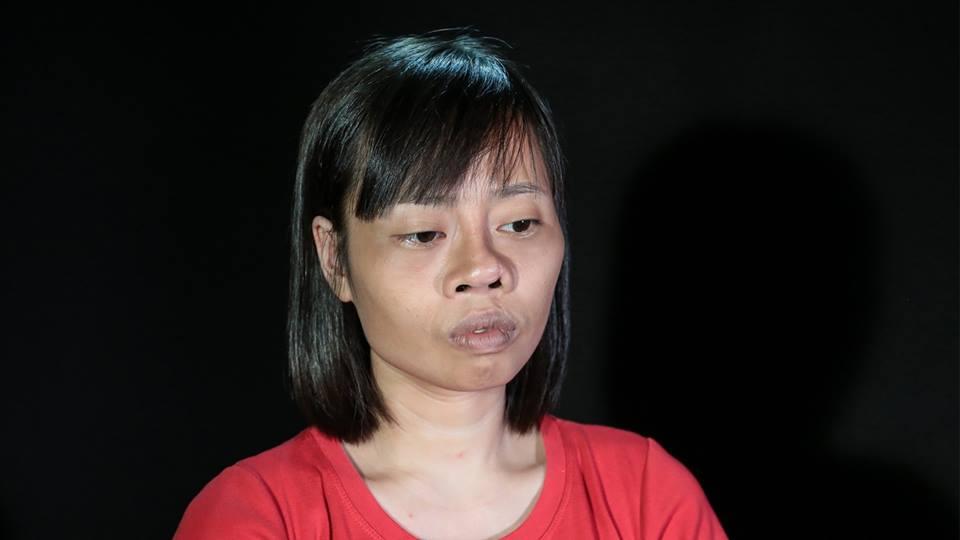 Gương mặt biến dạng vì gặp tai nạn trên đường đi nhận bằng tốt nghiệp, cô gái chịu đau đớn PTTM 3 lần và cái kết khiến nhiều người xúc động - Ảnh 1