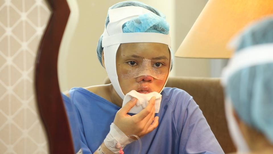 Gương mặt biến dạng vì gặp tai nạn trên đường đi nhận bằng tốt nghiệp, cô gái chịu đau đớn PTTM 3 lần và cái kết khiến nhiều người xúc động - Ảnh 2