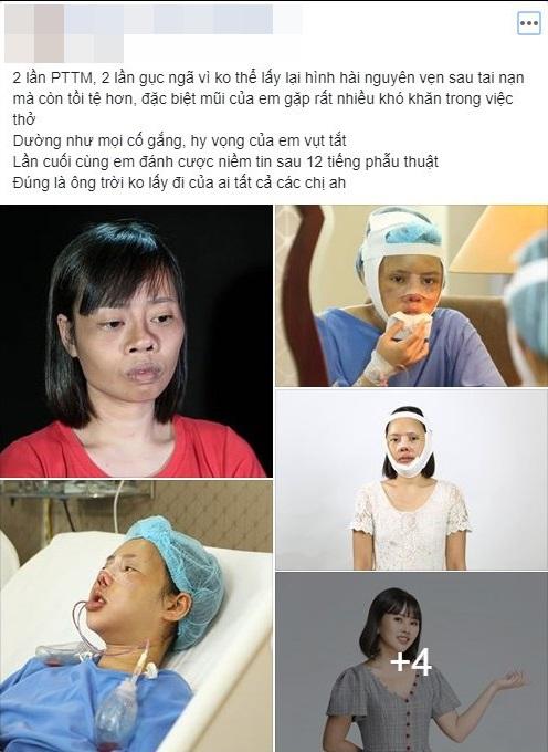 Gương mặt biến dạng vì gặp tai nạn trên đường đi nhận bằng tốt nghiệp, cô gái chịu đau đớn PTTM 3 lần và cái kết khiến nhiều người xúc động - Ảnh 7