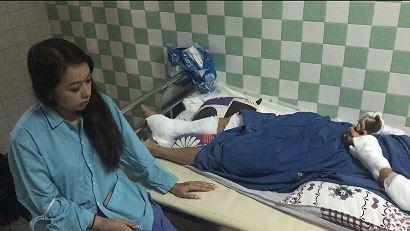 Vụ tạt axit, cắt gân chân Việt kiều vào mùng 5 Tết ở Quảng Ngãi: Lời kể hãi hùng của nạn nhân - Ảnh 2