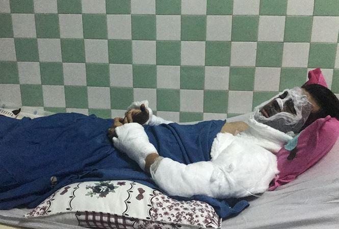 Vụ tạt axit, cắt gân chân Việt kiều vào mùng 5 Tết ở Quảng Ngãi: Lời kể hãi hùng của nạn nhân - Ảnh 1