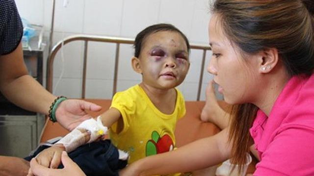 Cậu bé 6 tuổi xuất huyết não sau khi bị mẹ… tát: Cáu giận tới mấy cũng không đánh con ở vị trí này! - Ảnh 1