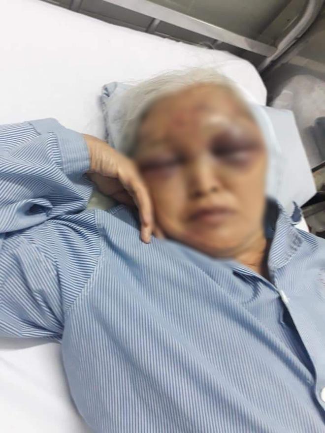 Hà Nội: Đến thăm con vào giữa đêm không được đồng ý, rể cũ ra tay đánh mẹ vợ nhập viện - Ảnh 1