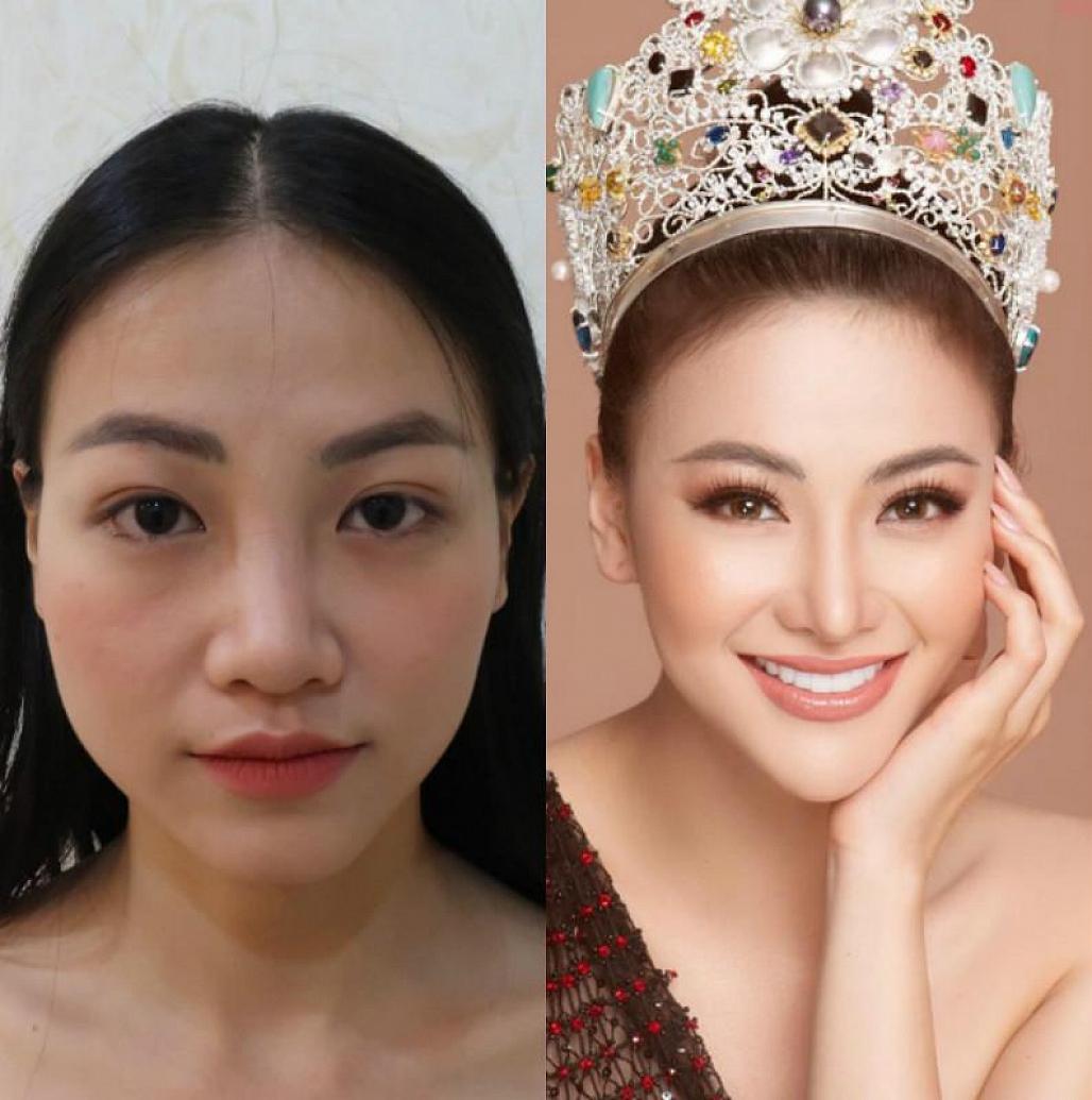 Giữa ồn ào bị tố nợ tiền tỷ, Hoa hậu Trái đất Phương Khánh lộ thông tin từng phẫu thuật thẩm mỹ - Ảnh 3