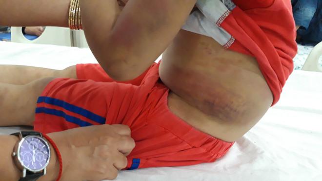 Tây Ninh: Mẹ ruột đánh đập con trai 6 tuổi bầm dập cả người - Ảnh 3
