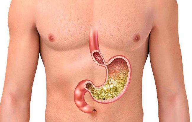 Tại sao bệnh dạ dày lại có thể tiến triển thành ung thư: Nhiều người không chú ý điều này - Ảnh 1