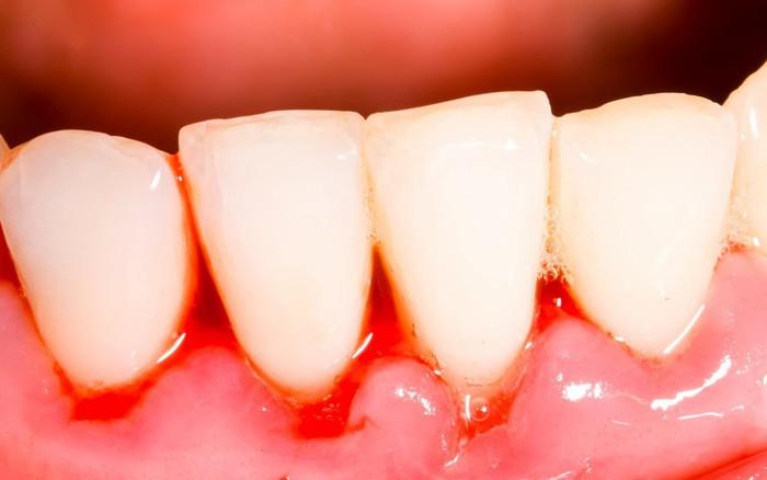 Cẩn thận mắc bệnh viêm nướu răng nếu gặp phải 5 dấu hiệu sau - Ảnh 1